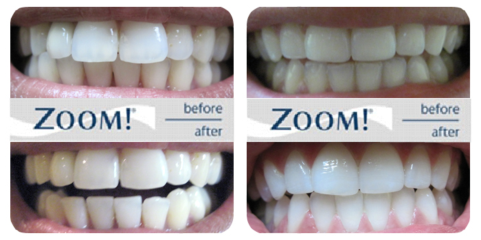 Zoom Teeth Whitening Before And After Images 2