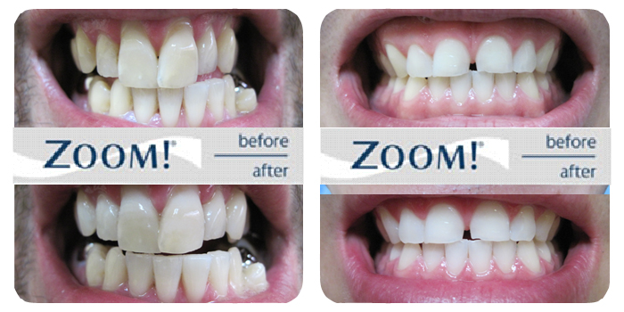 Zoom Teeth Whitening Before And After Images 3